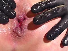 condom buttplug anal prolapse